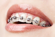 Braces, Orthodontics, Invisalign