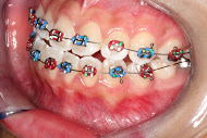 braces macquarie park